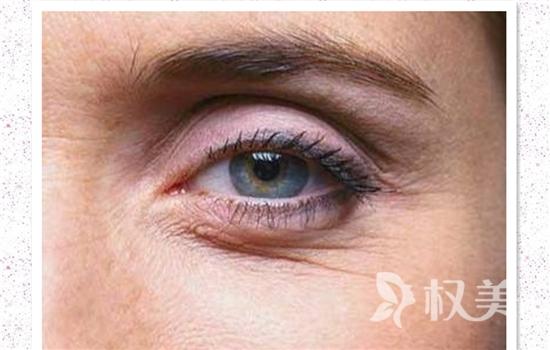 激光祛鱼尾纹有优点吗 术后可以化妆吗
