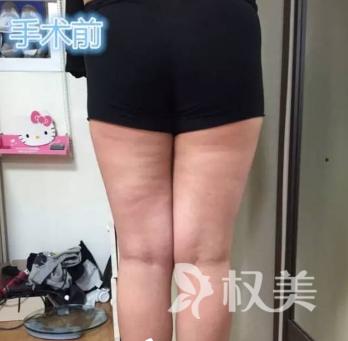 辛苦减肥小腿上的肉肉纹丝不动 小腿吸脂术让我腿围瘦了4厘米