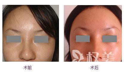 鼻头鼻翼缩小手术处理鼻翼软骨和鼻下组织 术后瘢痕不明显
