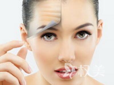 面部大拉皮除皱过程 将面部组织分不同层次分别予以悬吊拉紧