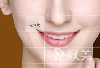 嘴角法令紋如何去除 激光除皺效果顯著無跡可尋