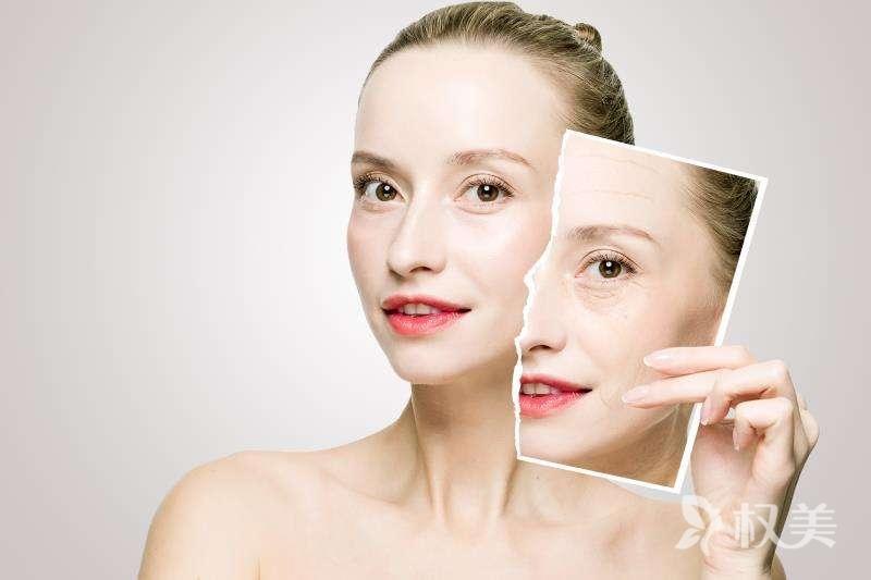 面部肌肤松弛不用怕 热玛吉除皱帮你恢复紧致肌肤