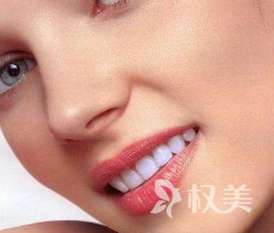 冷光牙齿美白能维持多久 先进成熟的进口美白牙齿技术
