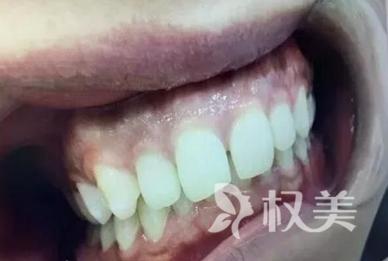 花了一年多时间在口腔医院做金属托槽牙齿矫正 整个人变漂亮了
