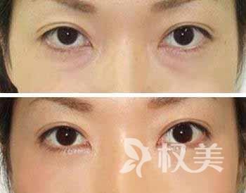 去眼袋多少钱 激光祛眼袋有效打散下眼睑、眼眶处深层色素沉着