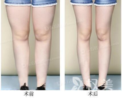 吸脂手术减小腿 医生要判断适宜的抽吸脂肪量