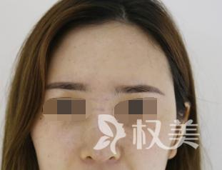鼻子是我一直以来的痛点 自从做了膨体隆鼻我的鼻子让我满意了很多