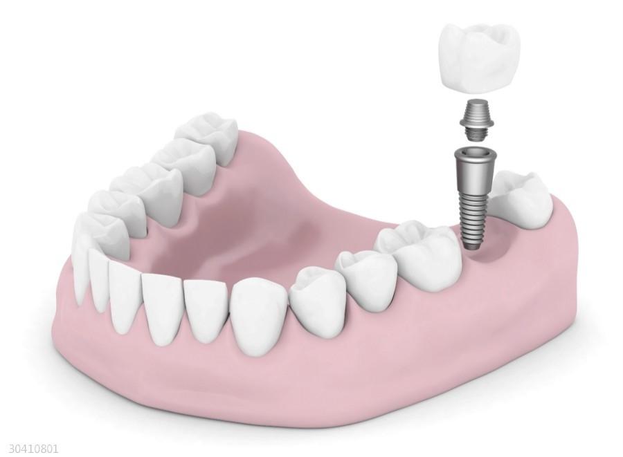 牙齿缺失怎么办 种植牙是你不错的选择
