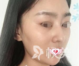 长沙亚韩整形医院做下颌缘面部吸脂术 呈现出了我喜欢的桃心脸