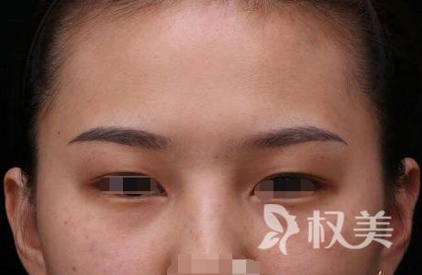 我在株洲希美整形医院做了调q激光祛斑 皮肤焕发出重生的光彩