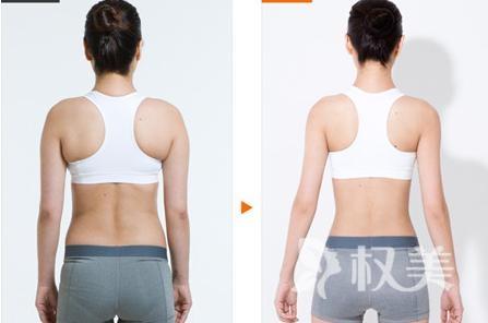 如何減肚子上的肥肉 腰腹部抽脂快速又健康