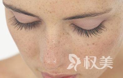 如何去掉脸上的黄褐斑 避免进入激光祛斑的三大误区