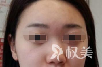 做了自体软骨隆鼻感觉效果挺好的 人也变好看了不少