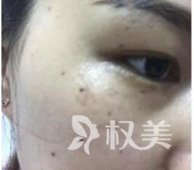 激光祛斑一个月后让我的脸上光滑无痕 恢复了过去的好肌肤