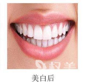 """冷光搞定大黄牙 西安圣贝牙科让我的牙齿""""白""""里挑一"""