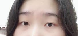 切开双眼皮的效果自然真实 我现在也拥有一双美丽双眼了