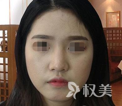 辽宁协和整形的综合鼻整形术 美鼻立现 让我美的不止一点点