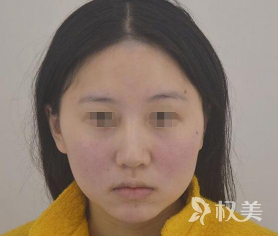 怎么瘦脸 北京京都时尚助我成就上镜小V脸