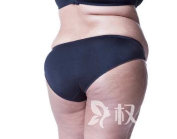 深圳鹏爱美容医院瘦身吸脂术要多少钱