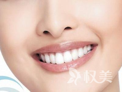 冷光美白牙齿价格是多少 爱笑的你运气不会差