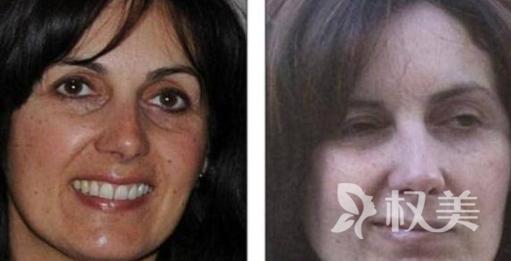 英國Penny Johnson除皺手術失敗 狀告醫院獲5400萬英鎊賠償