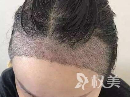 男生发际线高怎么办 长沙雍禾种植发际线好吗