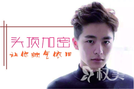 北京碧莲盛植发怎么样  S.H.T专有头发加密技术让你帅气依旧