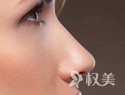 武汉新至美整形鹰钩鼻矫正要多少钱