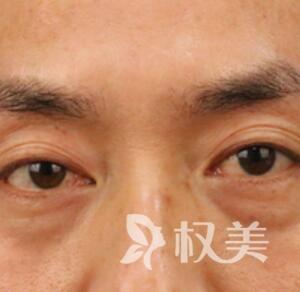 明航上海医院整形科激光去眼袋案例  清除我的厚重眼袋