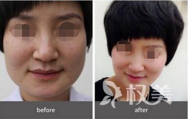 上海鹏爱磨骨瘦脸需要多少钱  手术会不会伤到神经