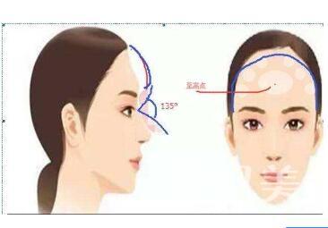 假体丰额头优缺点都有哪些呢  立体轮廓秀出来