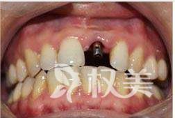 """种植牙需要多长时间 半年时间我的牙齿""""失而复得""""宛若天然"""