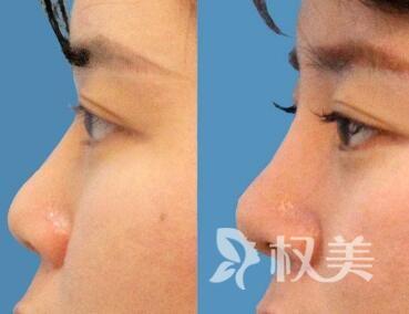 朝天鼻矫正术后效果真实自然吗  术后要怎么护理呢