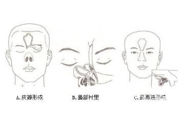 鼻部再造手术的效果怎么样  术后如何护理