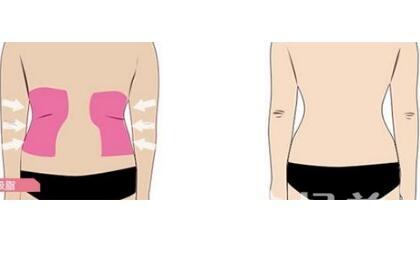 腰腹吸脂手術效果怎么樣  具體是怎么操作的