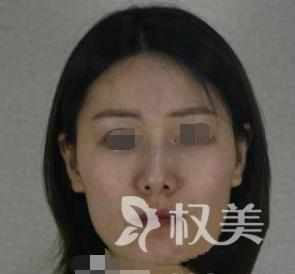"""我在重庆华美整形做磨骨瘦脸术 所有的坚持和耐心只为""""守得云开见月明"""""""