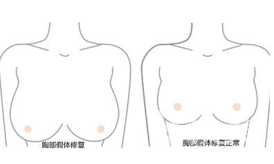 隆胸修复的方法有哪些  具体手术过程是怎么做的