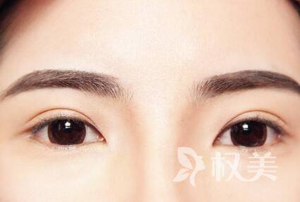 眉毛的生长周期是多久 南宁眉毛种植价格