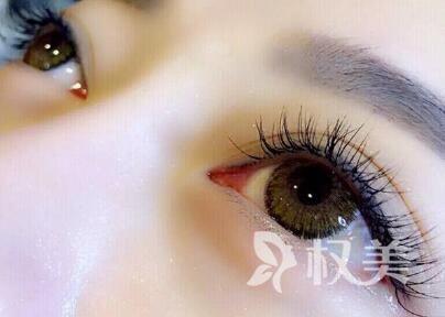 植发视频 睫毛种植过程是怎样的