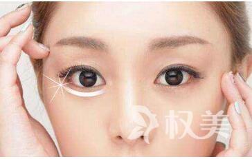吸脂去眼袋的效果怎么样  去眼袋术后如何护理