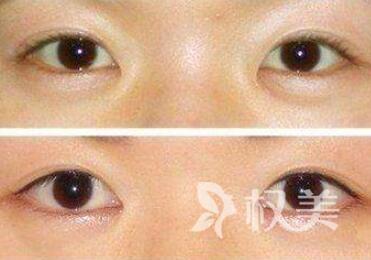 眼睑內翻矫正的方法有哪些  术后要怎么护理