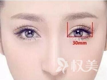 韩式双眼皮效果怎么样  有没有危险