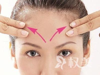 激光去抬头纹 不产生疤痕 无色素沉着