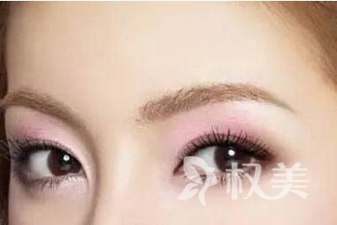 开外眼角有什么优势  哪些人可以做开眼角手术