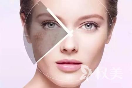 電波拉皮除皺安全嗎 緊致肌膚無需做手術