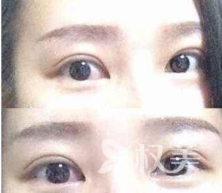 韩式双眼皮和欧式双眼皮有什么区别  双眼皮手术优势有哪些