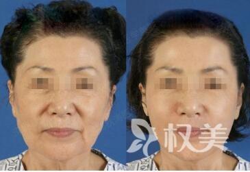 電波拉皮除皺的優點有哪些  拉皮除皺有沒有后遺癥