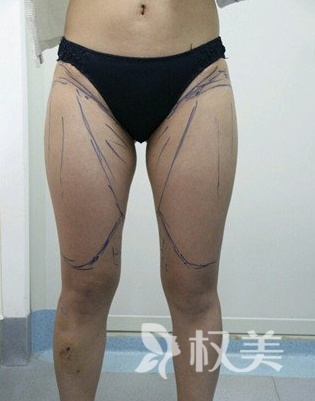 我在唐山苏亚美联臣 做了水动力吸脂  网红筷子腿不再是一个梦