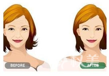 激光面部除皺有沒有副作用  需要多少錢