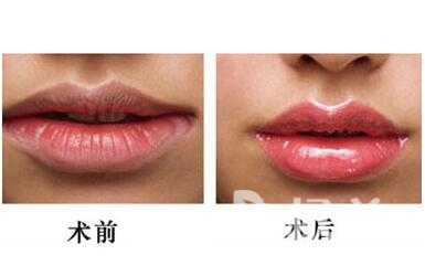 漂唇可以保持多长时间  无妆也能元气满满